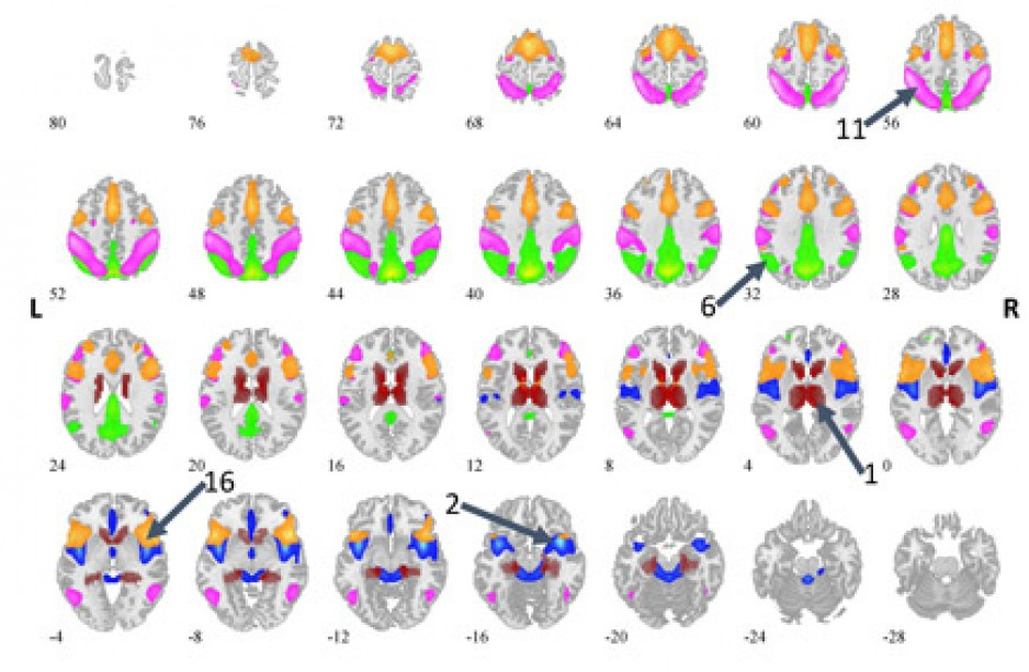 Research brain scan images